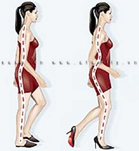 Hình dáng cơ thể bạn thay đổi tiêu cực khi thường xuyên sử dụng giày cao gót.