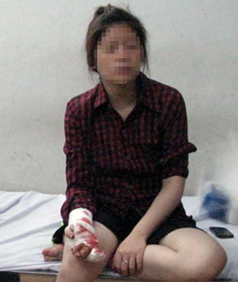 Chị Hồng bị dính nhiều viên đạn chì trên khắp cơ thể