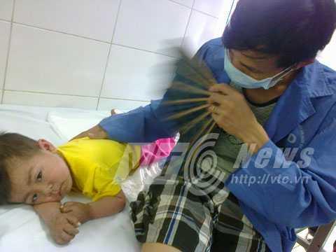 Cháu L. mẹ mới mất được 1 tháng, giờ bị mắc sởi đồng nhiễm với loại virus khác.