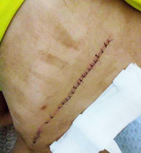 Vết thương trên lưng chị Trang.