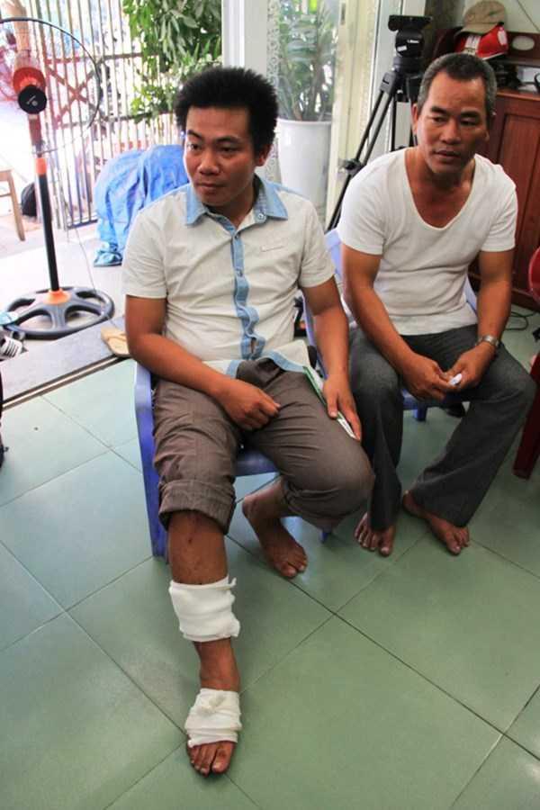 Anh Nguyễn Huỳnh Bá Biên (Thanh Khê, Đà Nẵng) -ngư dân trên tàu ĐNa 90152TS bị thương tích sau cú đâm lật, chìm tàu