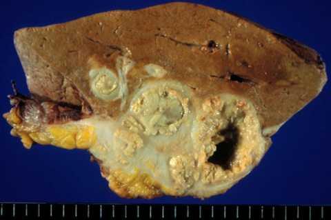 Bệnh phẩm gan lấy từ bệnh nhân nữ 57 tuổi bị ấu trùng giun đũa làm tổ. Ảnh: BS BV115