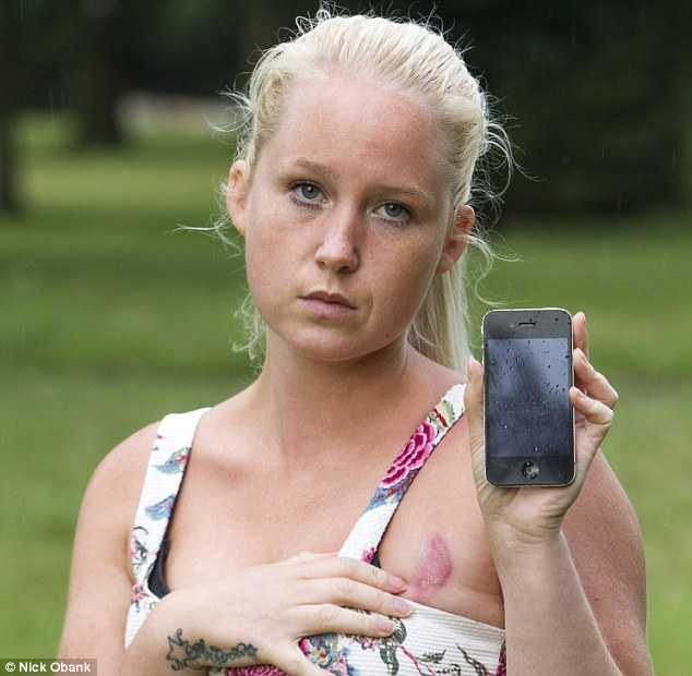 Dionne Baxter và chiếc iPhone 4 - thủ phạm vết bỏng nặng trên ngực cô.