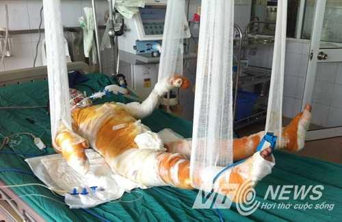 Cháu Trà My đang được điều trị tại bệnh viện