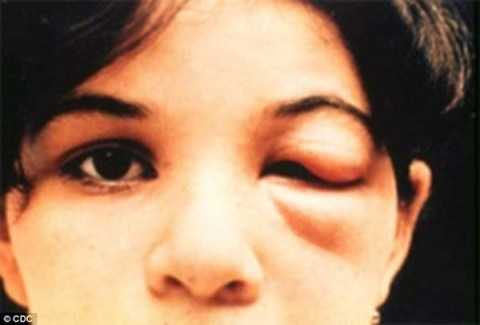 Một trong những triệu chứng của bệnh Chagas là một bên mí mắt bị sưng phù. (Nguồn: CDC)