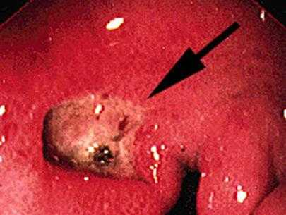 Dạ dày loét, tổn thương do vi khuẩn HP.