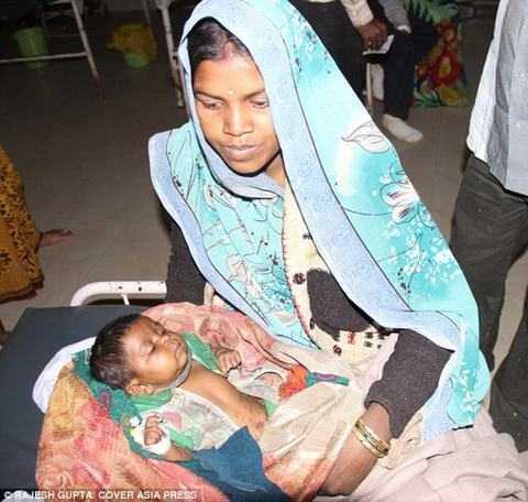 Hiện tại, bé đã được điều trị bỏng, viêm phổi và đang dần phồi phục.