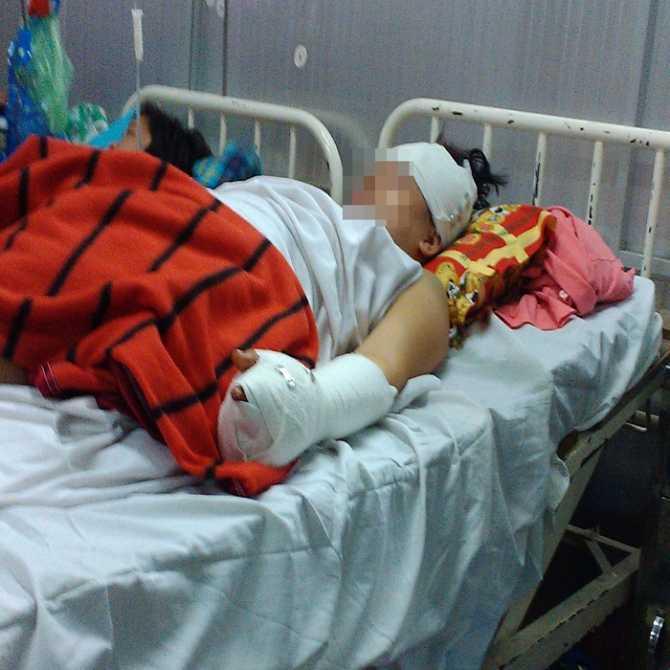 Chị Đ. bị hôn mê tại bệnh viện Chợ Rẫy. (Ảnh Đ.V.)