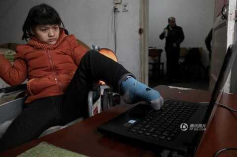 Hu Huiyuan bị liệt bẩm sinh, chỉ có thể cử động được phần đầu và chân trái.