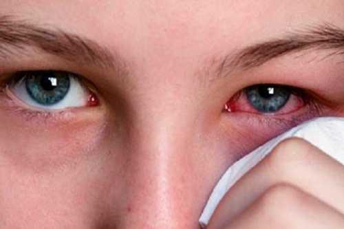 Viêm kết mạc là một bệnh dị ứng ở mắt. (Ảnh internet)