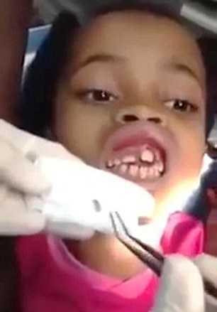 Ana Cardoso, 10 tuổi luôn cảm thấy có gì đó 'di chuyển' trong răng