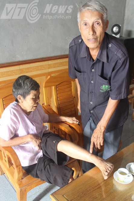 Ông Phan Đình Mùi chỉ vết hổ cắn ở chân bà Trần Thị Lê