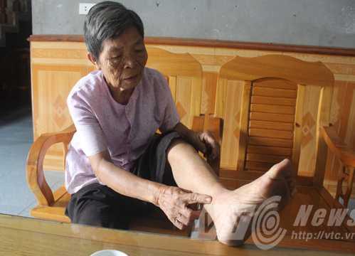 Bà Lê, người bị hổ xám cắn rách chân