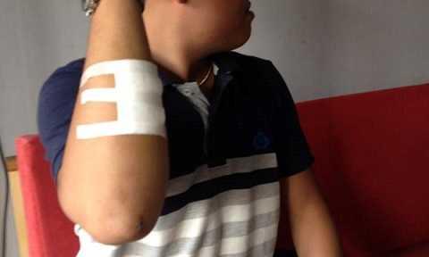 """Một đối tượng khác rút dao lam tự rạch vào              tay mình gây chảy máu, cầm dao lam tuyên bố """"bị nhiễm HIV"""" rồi tấn công              anh Sin, gây 3 vết thương trên người anh."""
