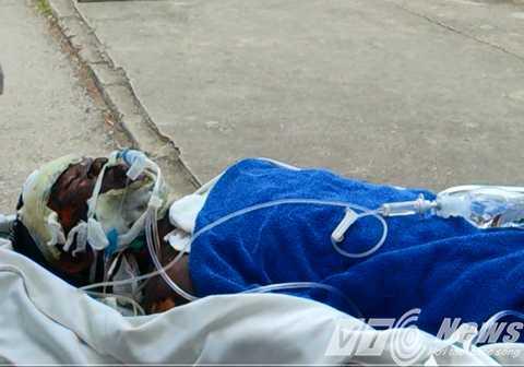 6 nạn nhân bị bỏng nặng đã được chuyển lên Bệnh viện Bỏng Quốc gia cứu chữa trong chiều nay (16/4) - Ảnh MK