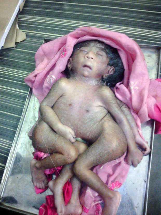 Bé sơ sinh ở Ấn Độ có 4 tay, 4 chân được xem như hiện thân của thần Hindu