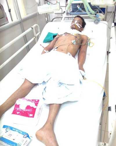 Anh Phùng Văn Xuân đang điều trị tại bệnh viện Việt Đức (Ảnh: KVH)