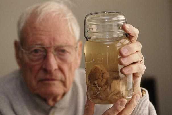 Ông Harvey đã qua đời năm 2007. Ảnh trên chụp ông đang cầm lọ đựng mẫu não Einstein năm 1994. Ảnh: Getty Images