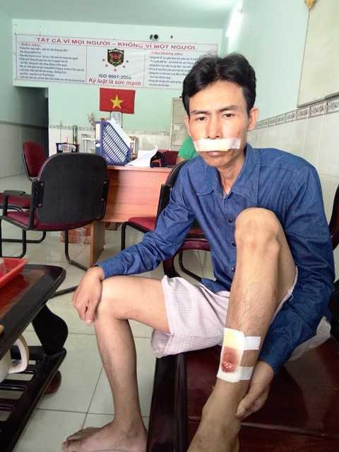 Nạn nhân Bốn bị nhóm Lâm Đức Hòa đánh gây thương tích trong khi đang bảo vệ trong KCN Liên Hưng (tỉnh Long An). Ảnh:Phan Cường