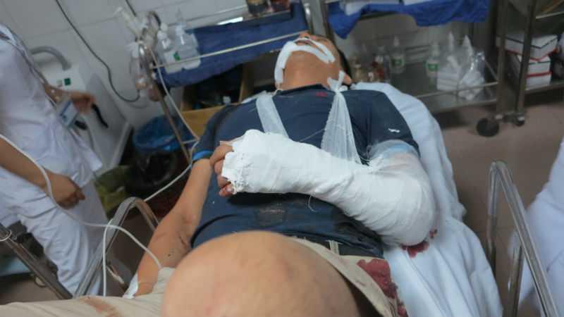 Tài xế xe du lịch bị thương rất nặng đang được các bác sỹ cứu chữa.