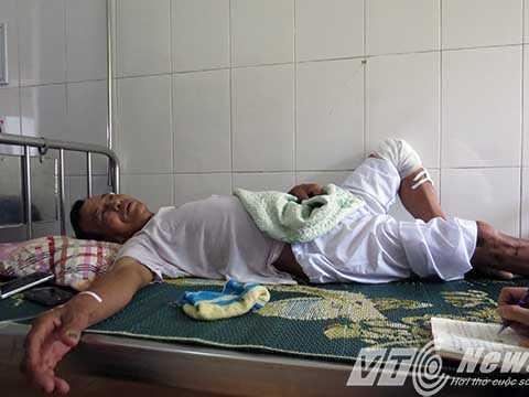 Ông Trần Minh Đố bị côn đồ truy sát với nhiều vết thương, hiện đang trong thời gian bình phục - Ảnh MK