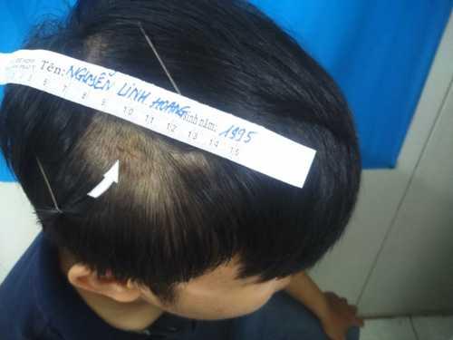 PV Linh Hoàng giám định thương tật tại Trung tâm giám định pháp y TP HCM sáng 15/6