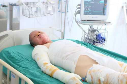 Chị Minh tại Bệnh viện Bỏng Quốc gia.