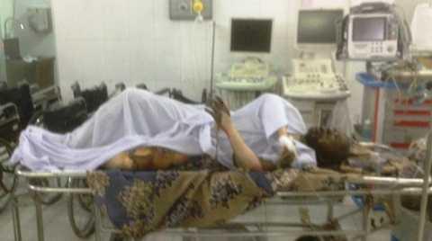 Nạn nhân bị bỏng nặng, tử vong sau đó