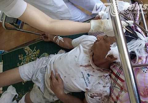 Ông Trần Minh Đố bị chúng chém  trọng thương phải nhập viện