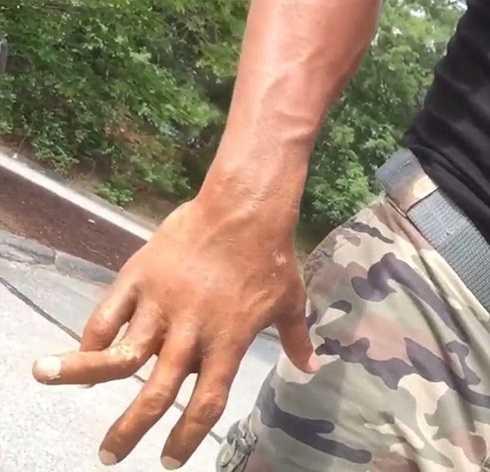 Hình ảnh ngón tay gãy được 'The Rock' đăng trên Instagram ngày 14/7.
