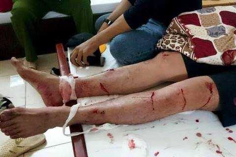 Cascadeur Lê Quế Lâm bị đâm chém nhiều nhát ở chân và cơ thể