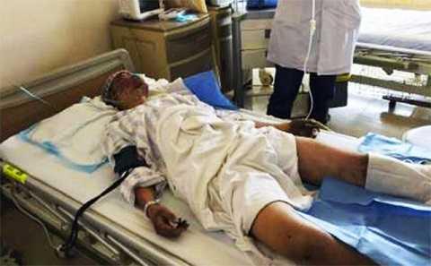 Một lính cứu hỏa bị thương nặng được điều trị trong bệnh viện
