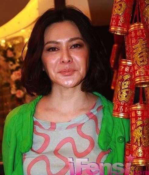 Gương mặt  Quan Chi Lâm méo mó bất thường, trước đó đã có nhiều dấu hiệu của việc tiêm chất làm căng da