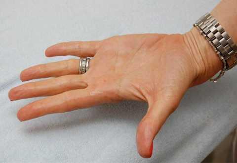 Bàn tay ướt mồ hôi khiến bạn ngại ngần không dám chạm vào ai hay vật gì.