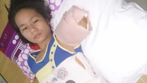Nạn nhân Trần Thị Yến bị hổ nuôi vồ đứt tay - trên giường cấp cứu tại Bệnh viện chấn thương chỉnh hình Nghệ An