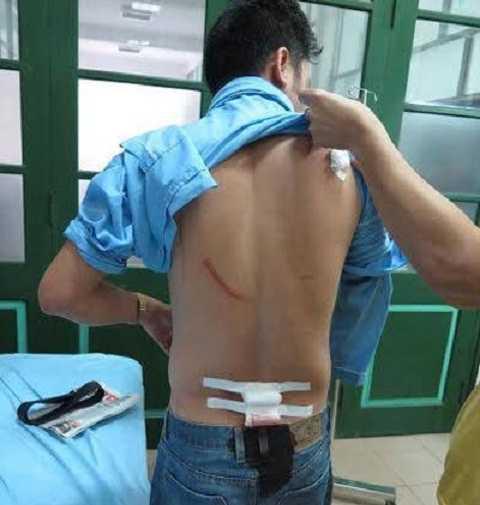 Những vết thương trên người nhà báo Nguyễn Ngọc Quang