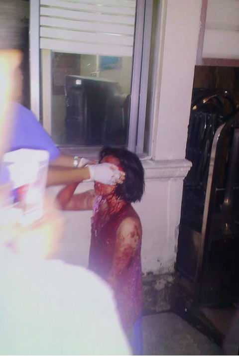 Nạn nhân bị thương được cấp cứu.