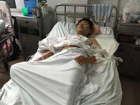 Nguyễn Anh Lâm (19 tuổi), ở ngõ Tôn Đức Thắng, phường Hàng Bột, quận Đống Đa, Hà Nội là một trong những nạn nhân bị thương sau vụ nổ.