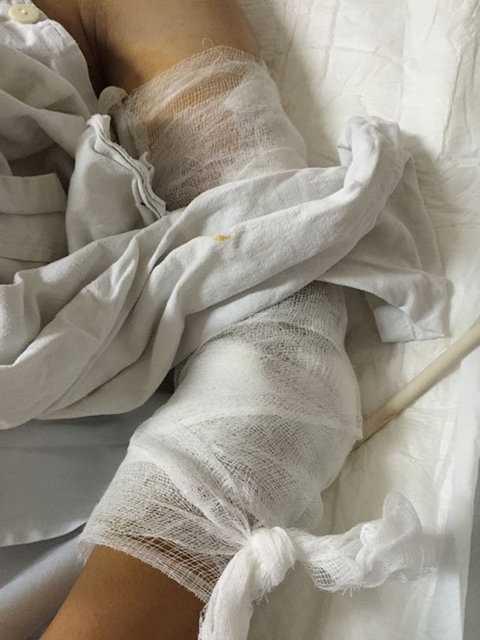 Lâm bị thương ở cánh tay trái phải băng bó.