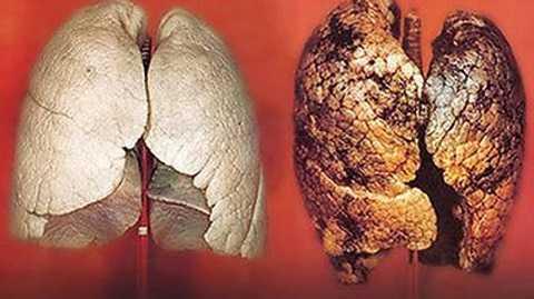 Ung thư phổi.