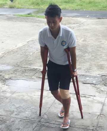 Anh Khoa phải chống nạng hoặc ngồi xe lăn, có thể buộc phải giải nghệ