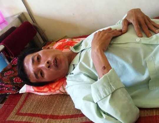Ông Điều đang được điều trị tại Bệnh viện Đa khoa tỉnh Hà Nam