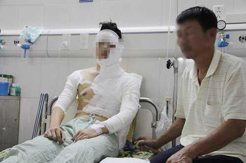 T. bị bỏng khá nặng ở vùng mặt trái, cổ và bả vai.