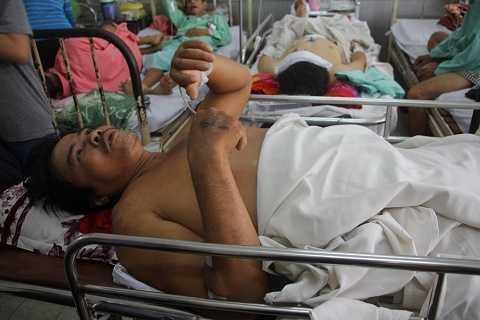 Nạn nhânÚtđang được điều trị tại bệnh viện Chợ Rẫy