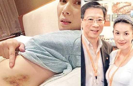 Giang Hy Văn bị chồng bạo hành.