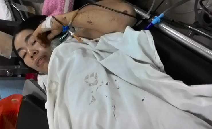 Chị Lâm Thị Tí đang nằm điều trị tại bệnh viện, kinh hãi kể lại phút giây bị chồng dùng dao sát hại.