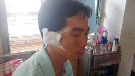 Anh Luận đang điều trị tại bệnh viện đa khoa tỉnh Đắk Lắk.