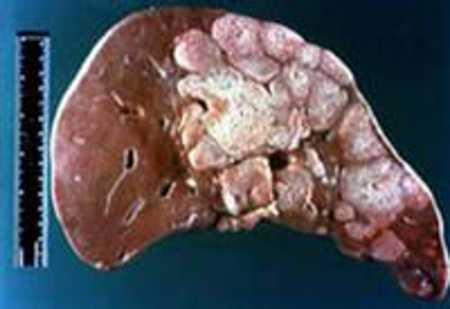 Ung thư gan.
