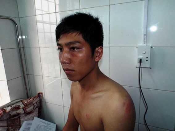Trần Bá Ninh đang nằm điều trị thương tích tại Bệnh viện đa khoa H.Minh Hóa.
