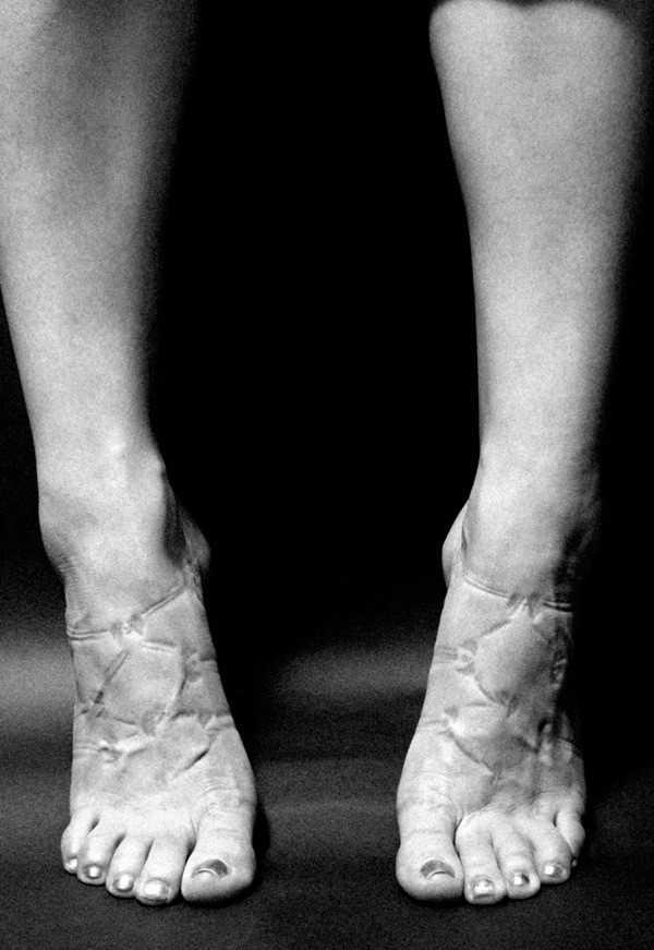 Đôi giày quá chật có thể khiến bàn chân tổn thương.